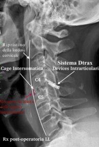 DTRAX sistema cervicale mini invasivo
