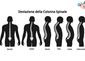 Lombalgia ( mal di schiena ) persistente provocato da discopatie dolorose lombari ad uno o piu' livelli